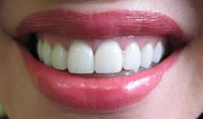 Stained teeth treated with ceramic crowns