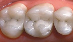 Tooth colored fillings by Dr. Brooks in Winthrop, MA