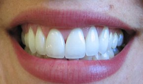 Porcelain veneers renewed at Brooks Dental, PC