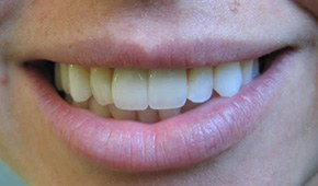 Ceramic crowns by Dr. Brooks in Winthrop, MA