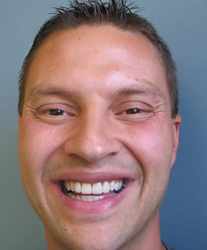 Discolored tooth repair in Winthrop, MA