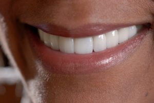 Winthrop porcelain veneers