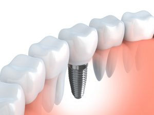 Smile gaps cause poor self-image and oral health. Learn about dental implants and bridges, choices for tooth replacement ar Brooks Dental in Boston.