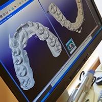 Digital dental impressions on computer screen