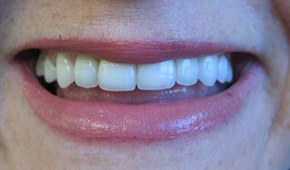 Closeup of repaired smile after