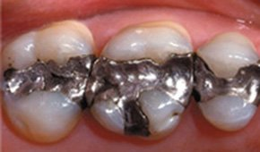 Tooth-colored dental restorations after treatment