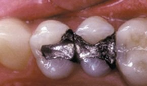 Three teeth with natural dental restorations after treatment