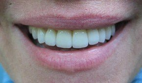 Closeup of woman's flawlessly aligned smile after