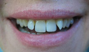 Closeup of woman's crooked smile before