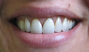 Closeup of discolored teeth before