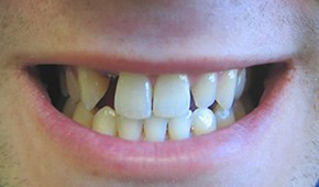 Closeup of flawless smile after treatment