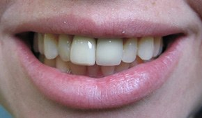 Closeup of dark colored front tooth before