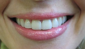 Cosmetic tooth restorations by Dr. Brooks in Winthrop