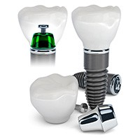 Animation of differnt types of dental implants