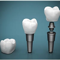 Animation of dental crown implant and implant crown