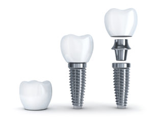tooth replacement dental implant